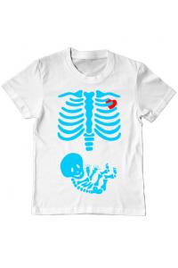 Cana personalizata Radiografie Alb